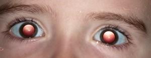 Bailey-eyes