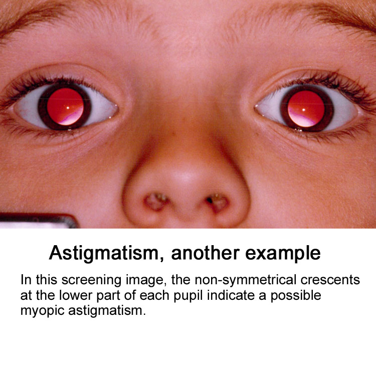 Astigmatism (2nd)
