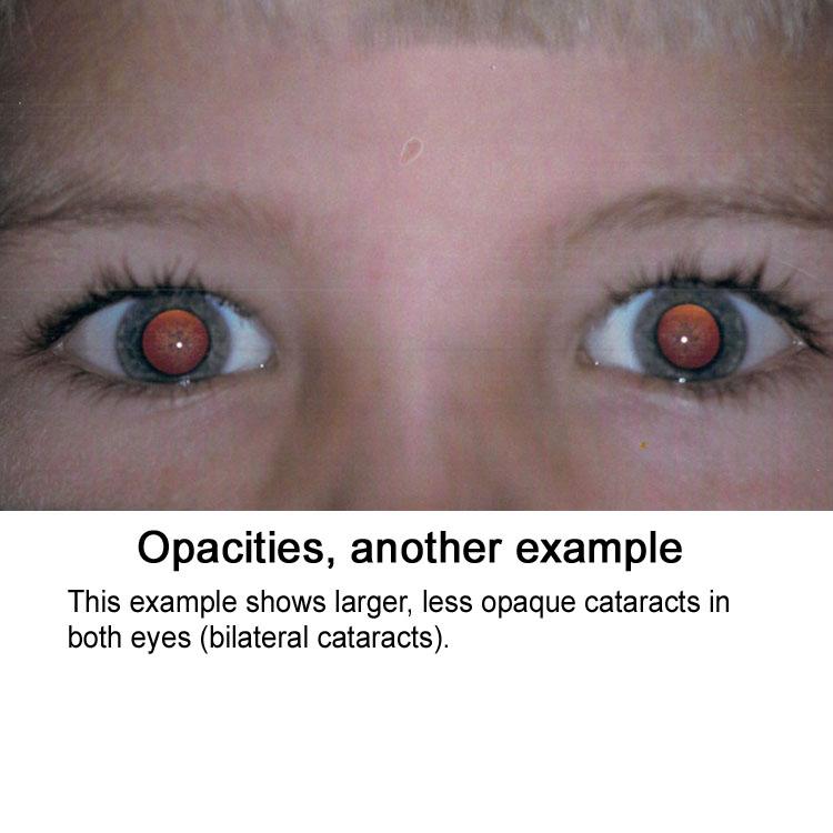 Opacity (2nd)